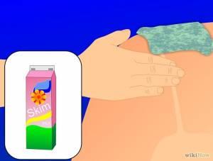 how to Treat the sunburn