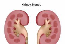 kidney Stone Problem