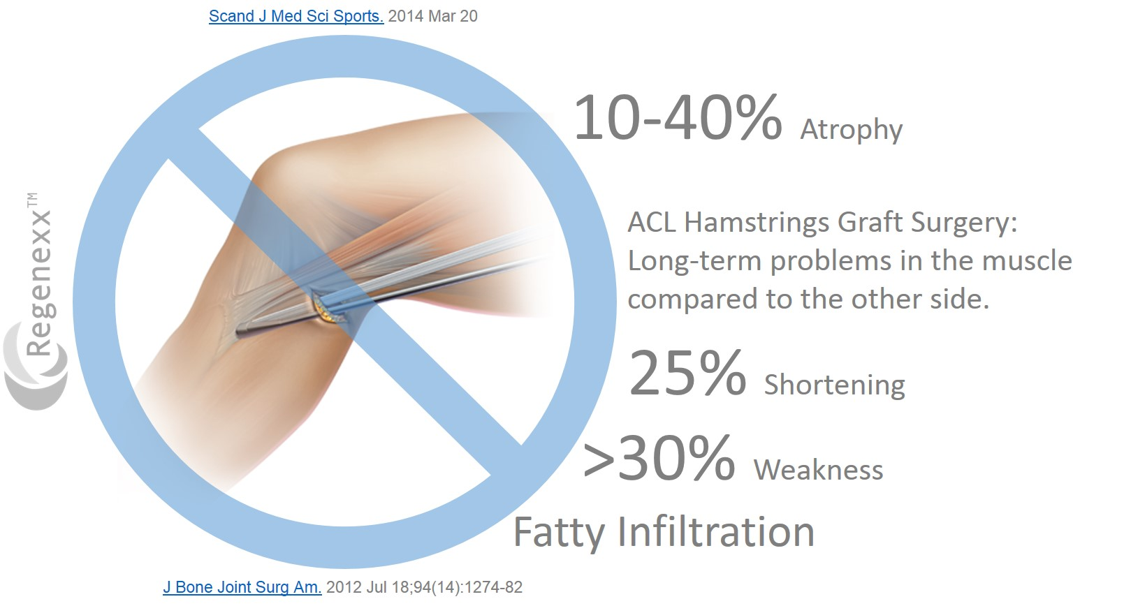 3 Usual Complications after ACL Surgery