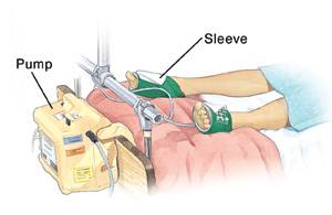 How to Prevent Blood Clots After Surgery