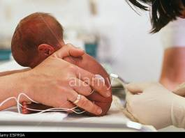 Lumbar Puncture in Premature Babies