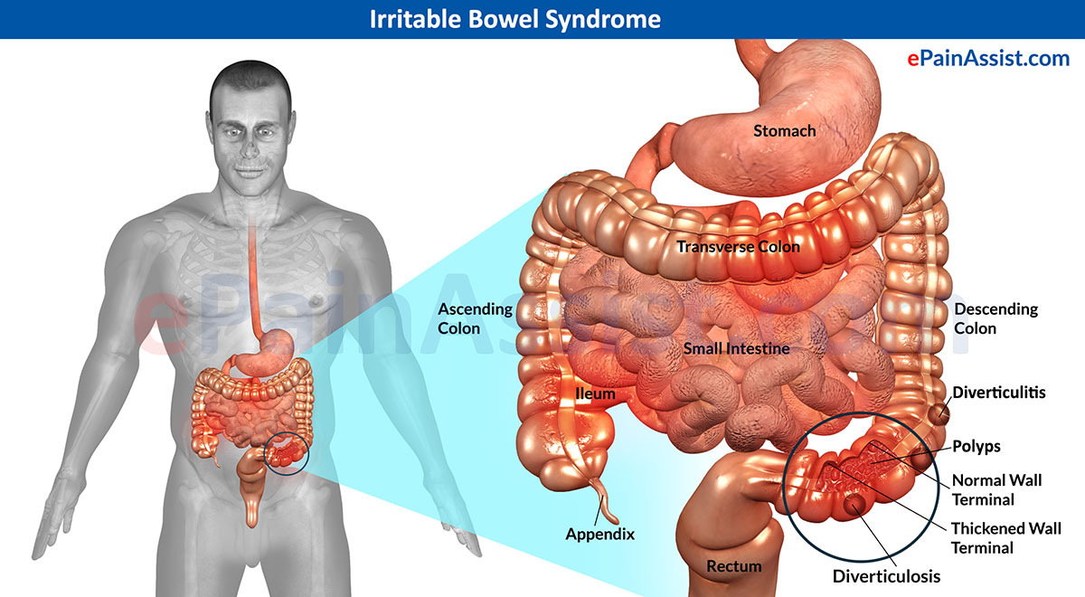 Ibs And Ibd Definition Symptoms And Treatment