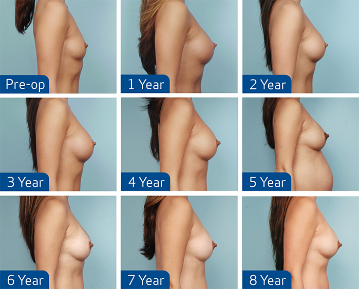 Small breast implants photos