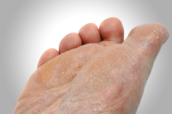 skin rashes on foot
