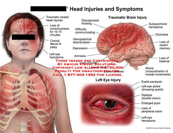 Eye Injuries from Head Trauma