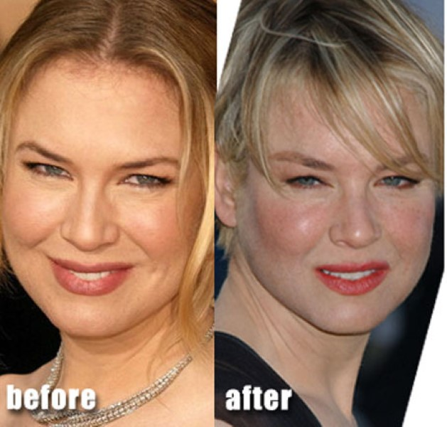 Outrageous Plastic Surgeries
