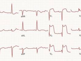 Segment Elevation Myocardial Infarction