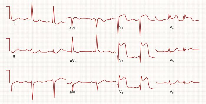 Segment Elevation Myocardial Infarction