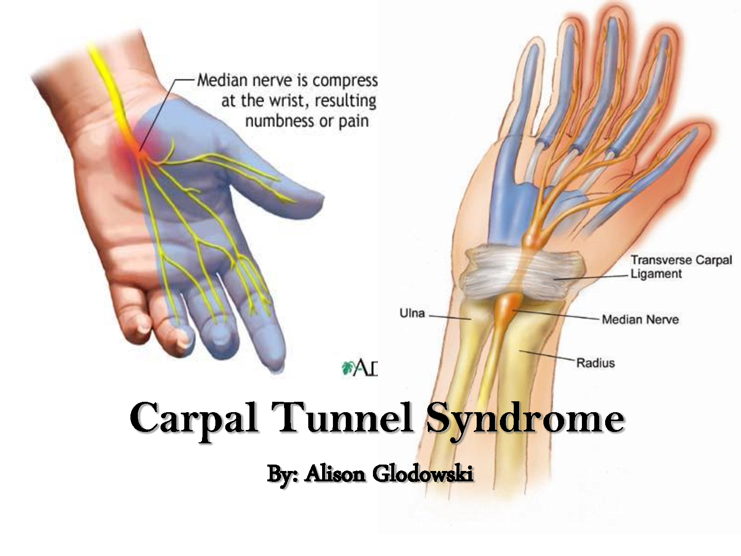 Carpal Tunnel Syndrome – Definition and Treatment - All in ...