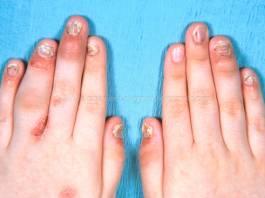 Psoriatic Arthritis Signs and Symptoms