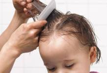 How to Easily Find Head Lice
